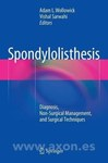 Spondylolisthesis: Diagnosis, Non-Surgical Management, and Surgical Technique by A. Wollowick and V. Sarwahi